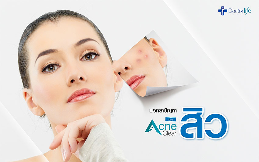 บอกลาปัญหาสิวด้วย Acne Clear Laser
